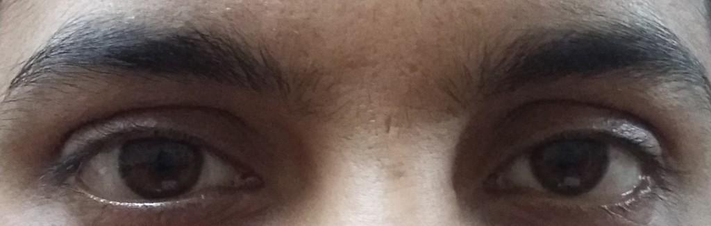how long eye drop quora